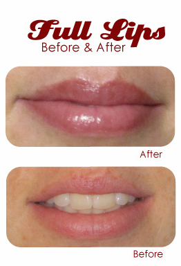permanent makeup before and after naturally gorgeous